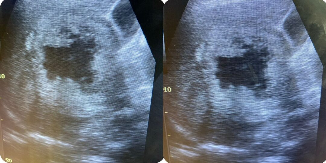 Detecting Pathologies Through Computer Vision in Ultrasound